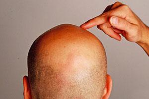 روش های جلوگیری از ریزش موی مردان